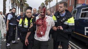 Agentes policiales, con un herido del 1 de octubre del 2017.