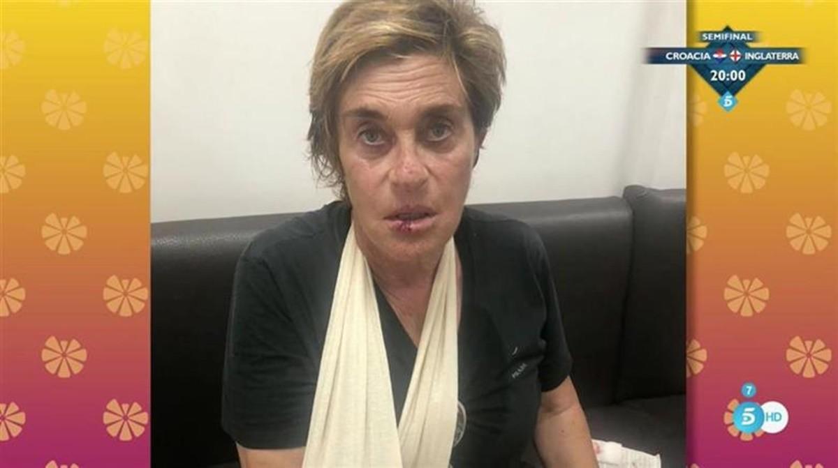 El accidente de Chelo García Cortés paseando a su perro