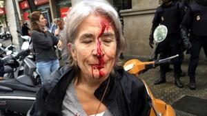 Una mujer ha resultado herida durante la carga policial en la escuela Infant Jesúsde Barcelona.