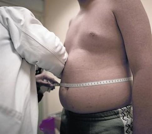 LA MEDICIÓN. Un médico mide el perímetro abdominal a un hombre que sufre obesidad.