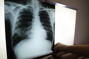 Los investigadores han conseguido secuenciar el genoma de la bacteria responsable de la tuberculosis.