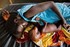 Una mujer intenta amamantar a su hijo, con síntomas de malnutrición, en Sudán del Sur.