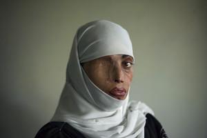 Fotografía de Busha Shari, una paquistaní atacada con ácido por su marido.