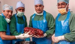 Los médicos con el riñón extirpado, de más de 7 kilos