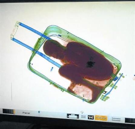 La imagen de escáner que descubrió a Adou dentro de una maleta.
