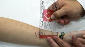 Pruebas cutáneas para detectar alergias en elHospital Clínicde Barcelona.