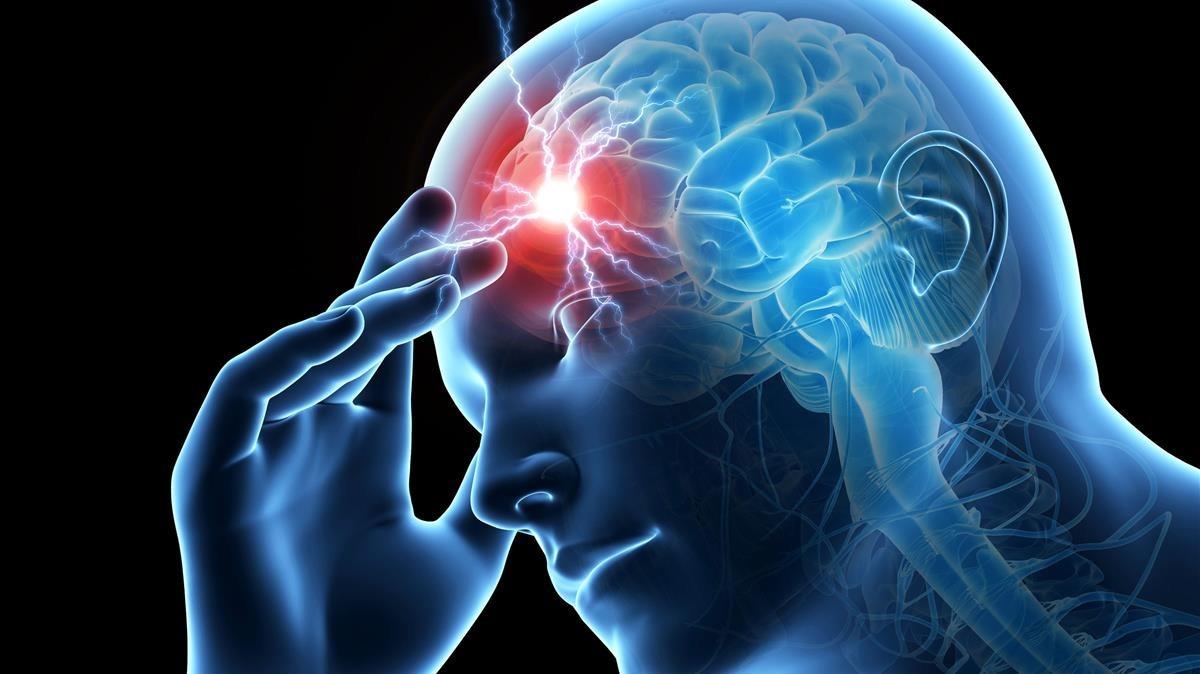 Els tractaments més efectius per a la migranya són ignorats pels pacients
