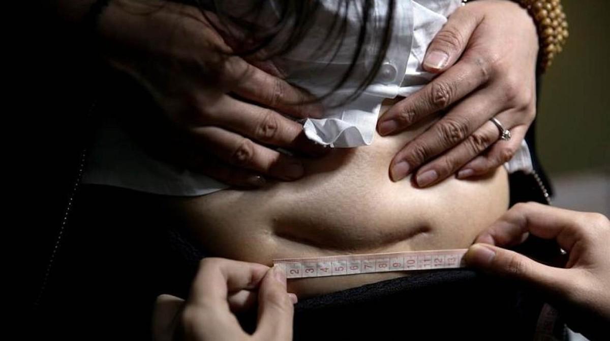 Tatuajes Para Olvidar Una Cicatriz