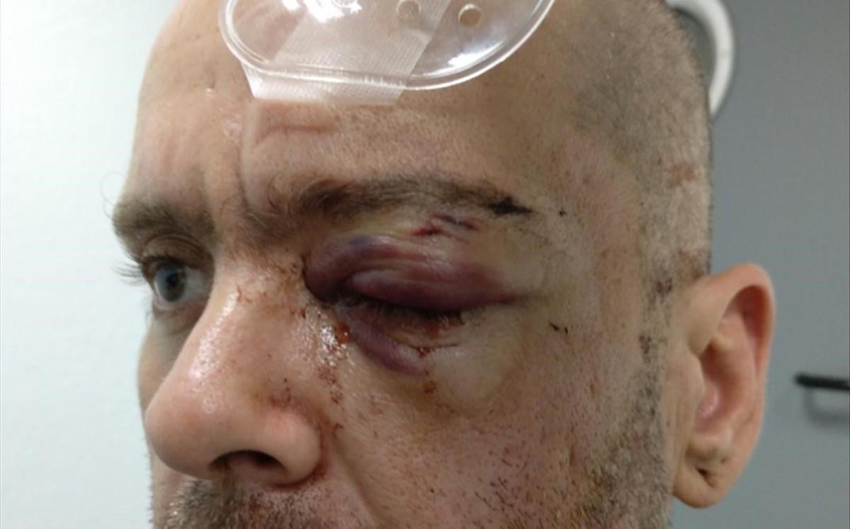 Ramón Gómez, tras ser herido por un agente de los Mossos en un desalojo en LHospitalet.