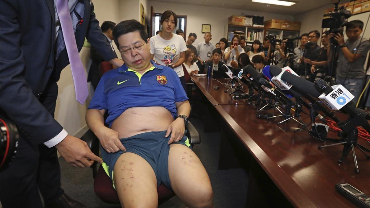 Howard Lam, con la camiseta del Barça,expone las heridas de sus piernas en una conferencia en Hong Kong el viernes 11 de agosto.