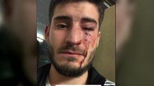 El joven que fue agredido en el metro, en una la imagen que él mismo subió a Twitter.