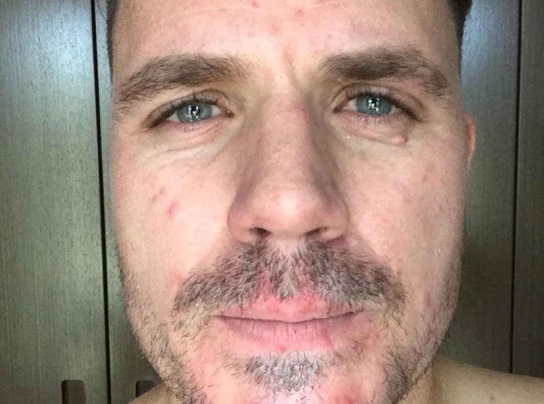 El cantante Dani Martín vuelve a mostrar la evolución deenfermedad cutánea que sufre.