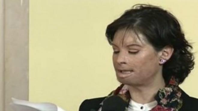 Una exmodelo colombiana da nombre a una ley que endurece el castigo a los ataques con ácido