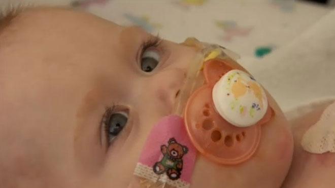 La increíble historia de Vanellope, la niña que nació con el corazón fuera del cuerpo.
