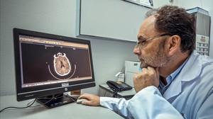 Jaume Roquer, jefe de Neurología del Hospital del Mar, analiza un TAC cerebral.