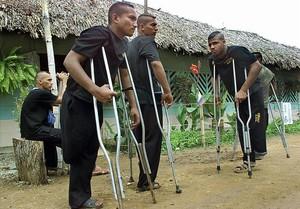 Paramilitares colombianos mutilados por minas antipersona descansan en un hospital.