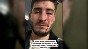 Un jove pateix una salvatge agressió homòfoba al metro de Barcelona