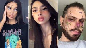 Usuarios de Instagram posan con algunos de los polémicos filtros de embellecimiento ofrecidos en la plataforma