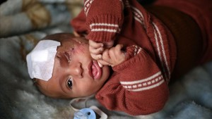 Internet es mobilitza per Karim, el bebè que va perdre la seva mare i un ull en un bombardeig d'Assad