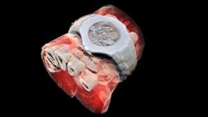 Imagen de la radiografía en 3D de una muñeca.