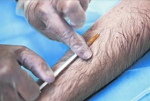 CULTIVO DEL MICROBIO. En la prueba de la tuberculina se inyecta bajo la piel una cantidad de filtrado purificado causal.