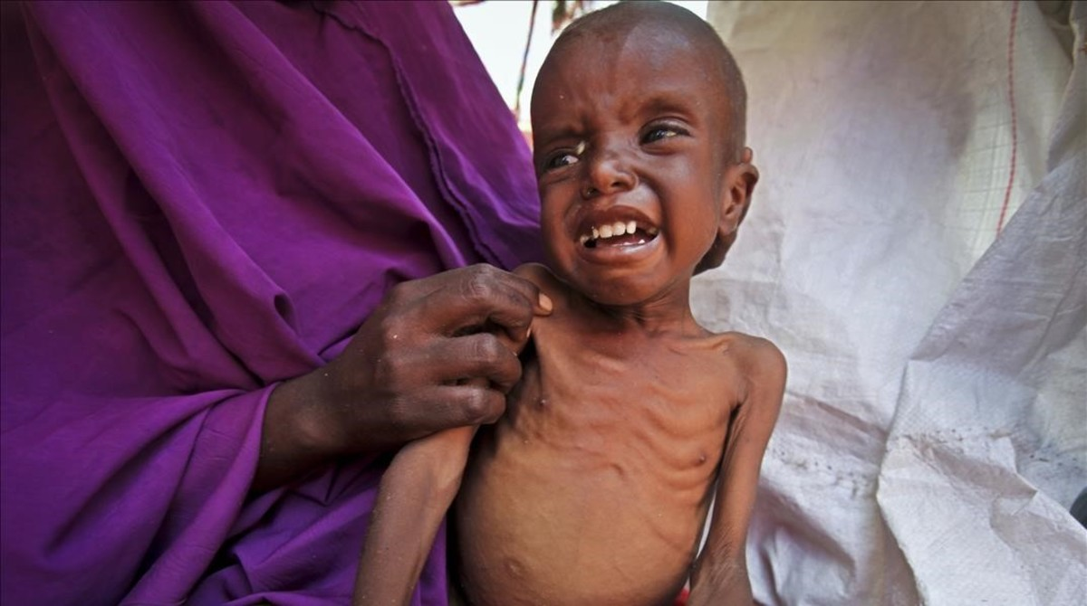 Un niño somalí de 7 años que padece malnutrición en el campo de desplazados deGarasbaley, a las afueras de Mogadiscio, la capital deSomalia.