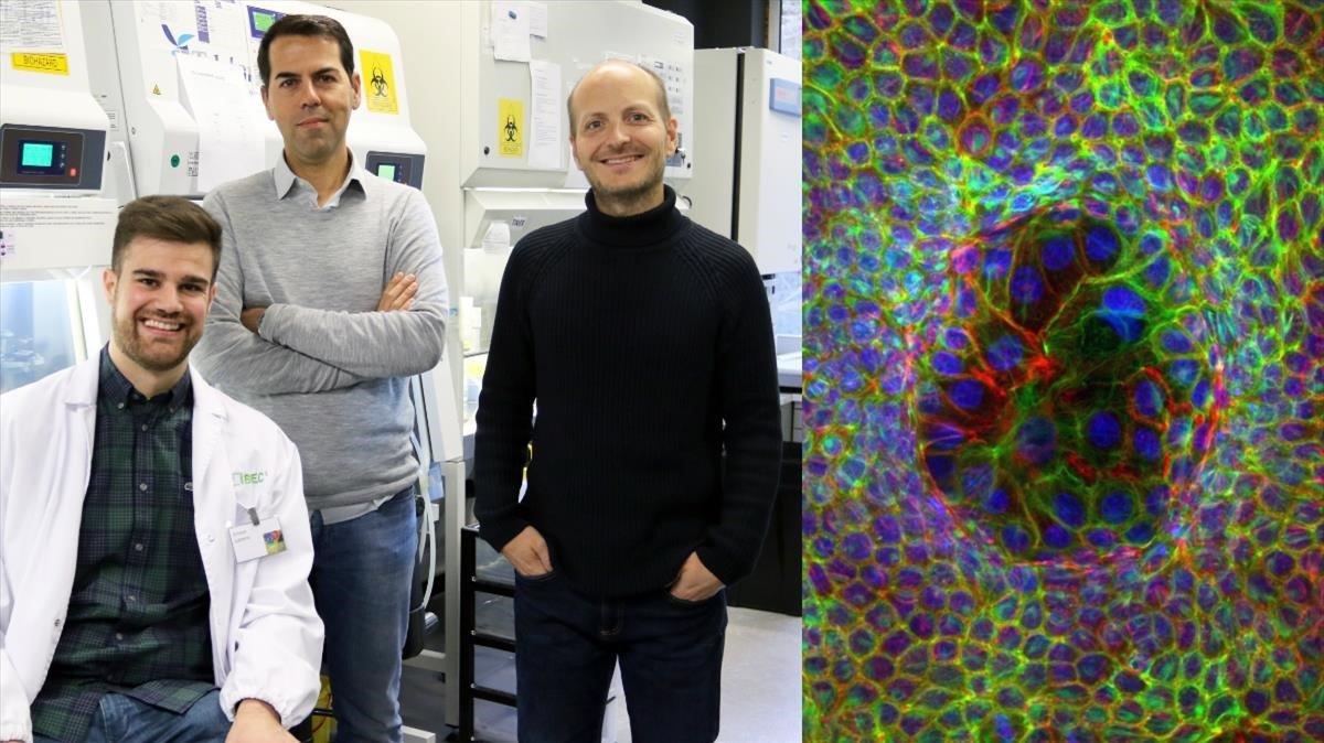 De izquierda a derecha: Ernest Latorre Marino Arroyo Xavier Trepat, investigadores responsables del hallazgo. A su lado una imagen de las células superdeformadas rodeadas por otras minimamente deformadas