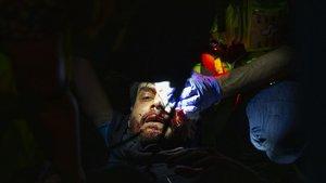Perd l'ull el noi ferit en les càrregues de l'aeroport de Barcelona