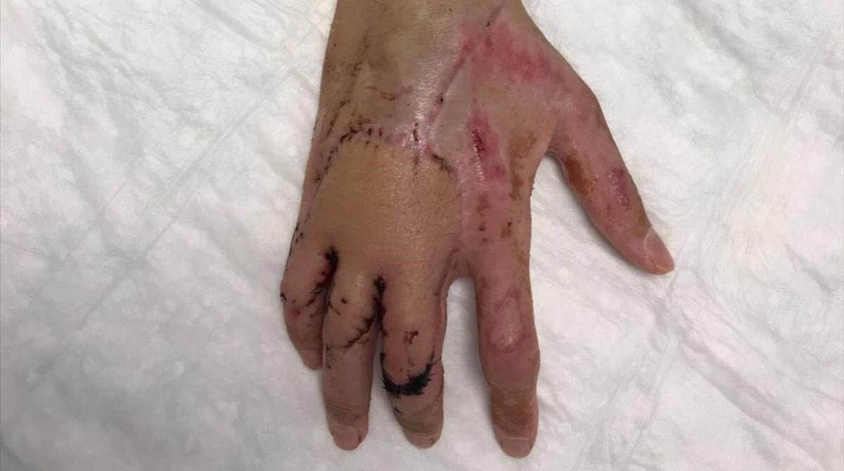 La mano de Bruno Hortelano, reestructurada por el doctor Xavier Mir.