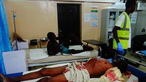 Una víctima de un ataque suicida yace en una cama de hospital esperando a ser atendida, en Maiduguri (nordeste de Nigeria), el 15 de agosto.