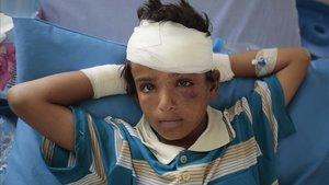 Un niño herido tras un ataque aéreo de la coalición liderada por Arabia Saudí.