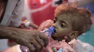 Una niña malnutrida en el hospital de Al Hudeida.