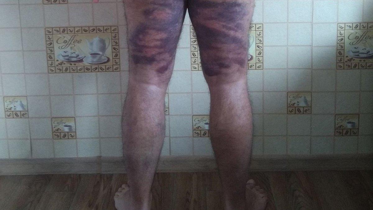 Repressió a Bielorússia: «Van trencar la porra colpejant el meu cos»
