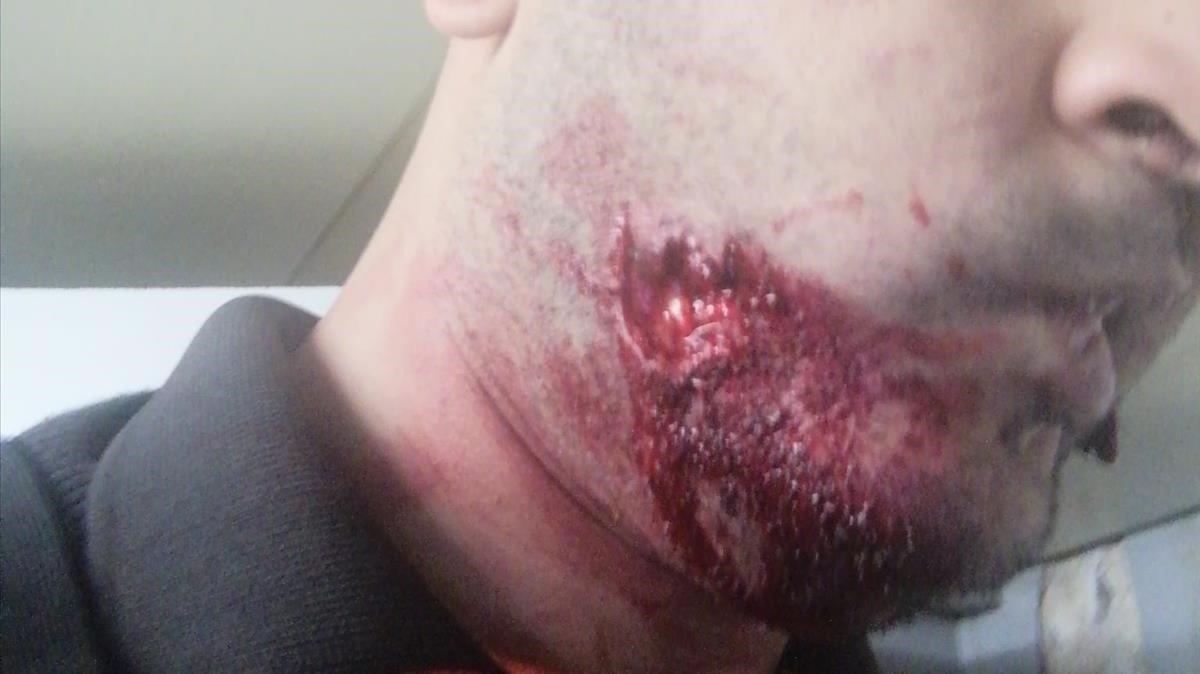 Imagen de una de las mejillas del vigilante tras la agresión