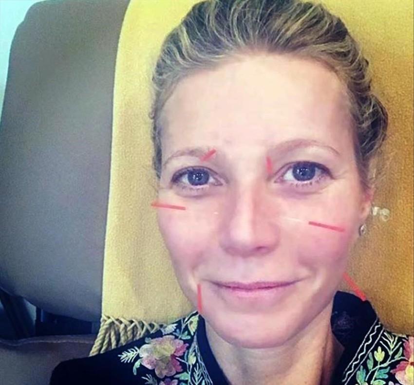 Gwyneth Paltrow posa con agujas en la cara y las orejas.