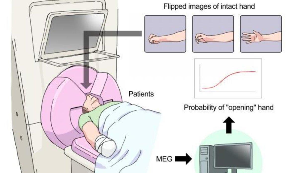 El cervell es pot manipular per reduir el dolor del membre fantasma