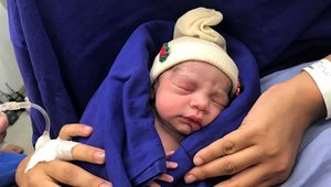 La bebé, tras nacer, en una imagen distribuida por el hospital universitario de las Clínicas de Sao Paulo (Brasil).