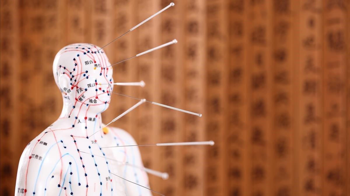 El 60% de los españoles creen que la acupuntrua funciona, según los datos de la Fundación para la Ciencia y Tecnología.