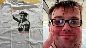 El youtuber sueco El Lobo tras la agresión que sufrió y la camiseta que llevó a la manifestación antifascista del 1 de Mayo en Gotemburgo.