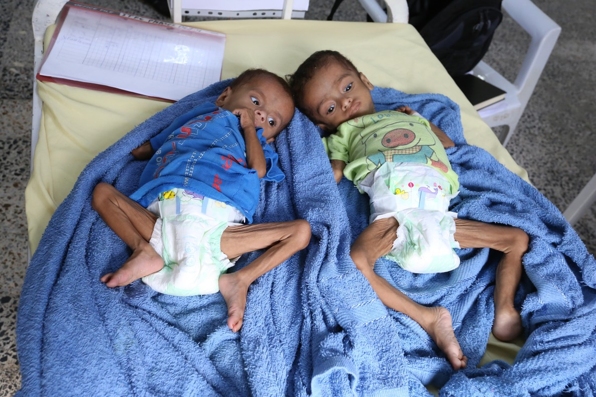 Niños hambrientos en Yemen