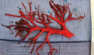 L'insòlit coàgul de sang que va expulsar un pacient al tossir
