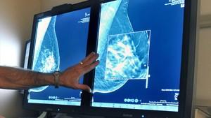 Examen radiológico de un cáncer de mama.